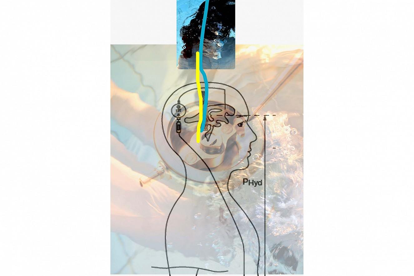 Entwurf Kopfmodell  Aufnahmen aus der Produktion/Ventile der Neurochirurgie, Firma Miethke GmbH, Potsdam